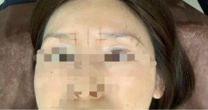 眉毛の黄金比計測